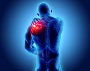 Der Bewegungsapparat Schmerzen in Schulter