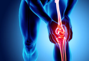 Der Bewegungsapparat Schmerzen in Knie
